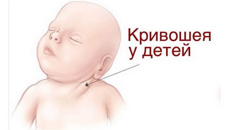 Кривошея: вызовы, с которыми сталкиваются родители новорожденных и операция в старшем возрасте | медицинский дом odrex