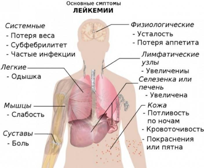 Паллиативная помощь при остром лейкозе у взрослых, лечение острого лейкоза