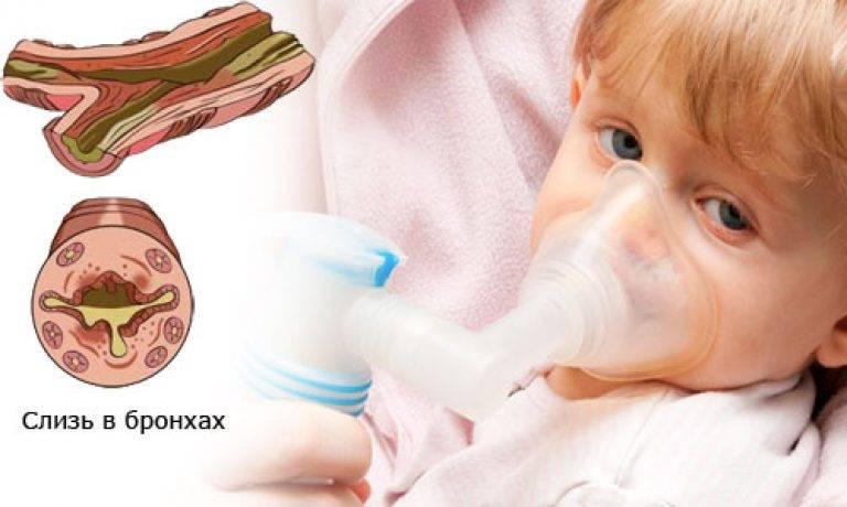 Правила питания детей смуковисцидозом — медицинский портал «мед-инфо»