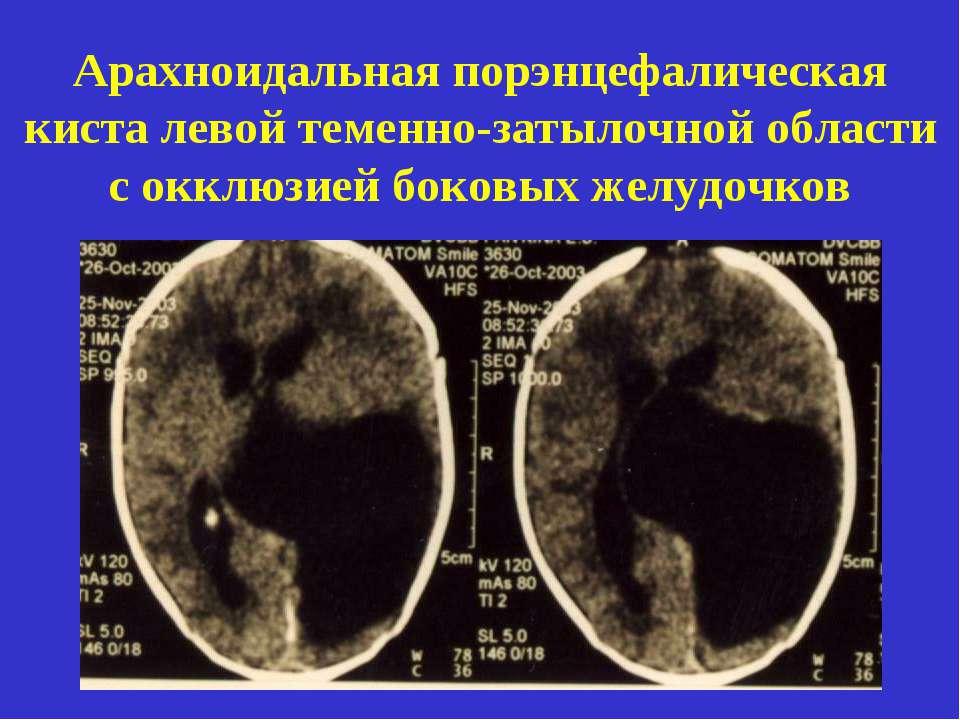 Арахноидальная киста | компетентно о здоровье на ilive