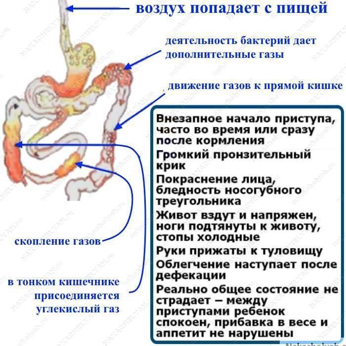 Причины скопления газов у малышей - medical insider
