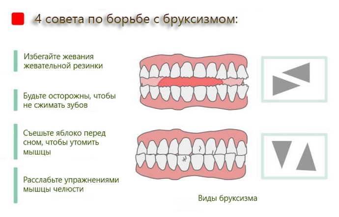Почему ребенок скрипит зубами во сне - причины и лечение