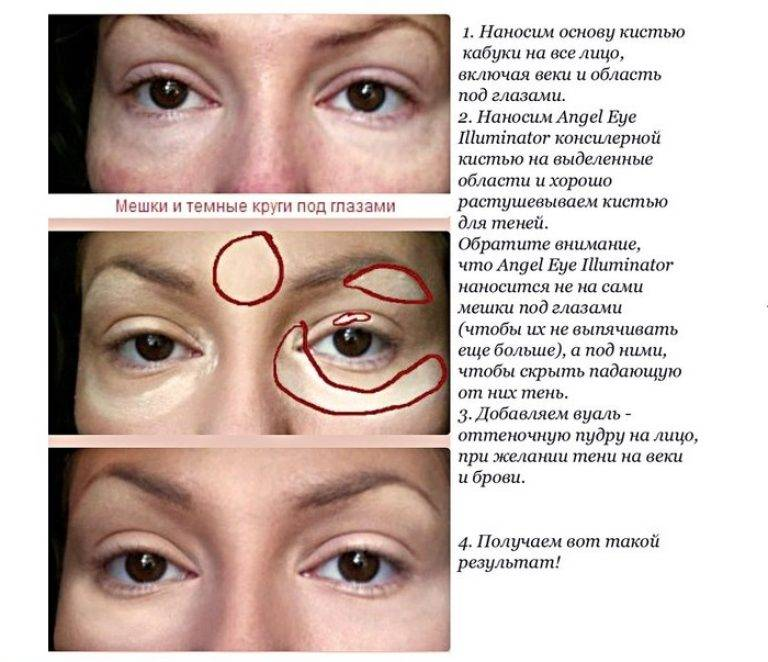 Лечение отеков и мешков под глазами