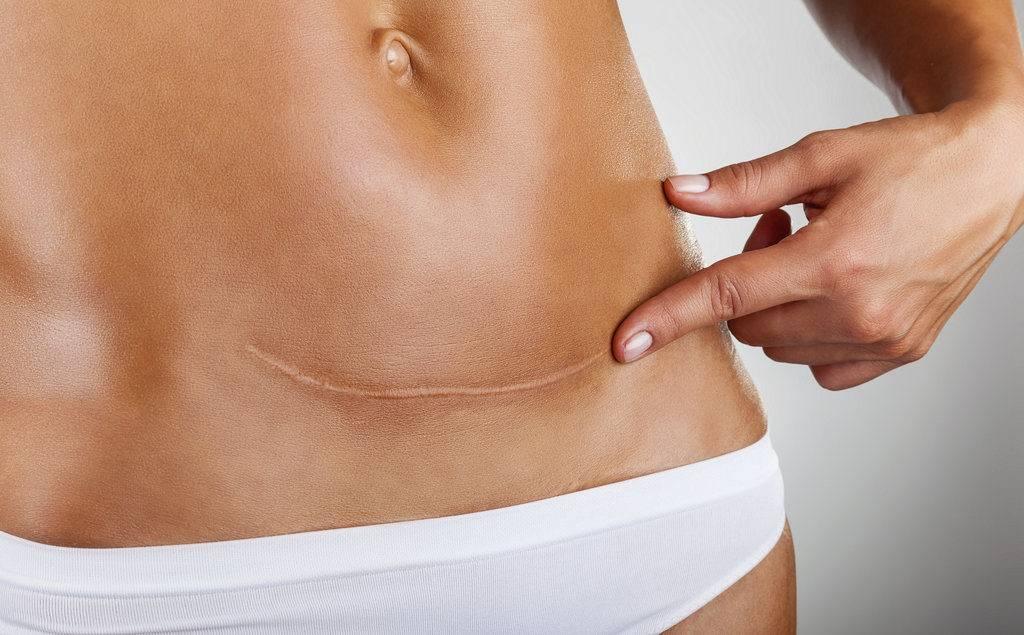 Боли после кесарева сечения: причины, сколько времени болит живот и ощущается онемение, что делать?