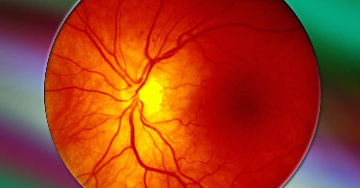 Как проявляется диабетическая ретинопатия