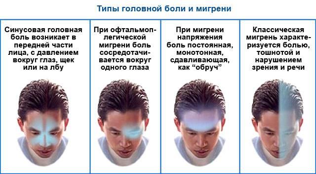 1.3. периодические синдромы детского возраста, часто предшествующие мигрени : 1. мигрень - портал «боль»