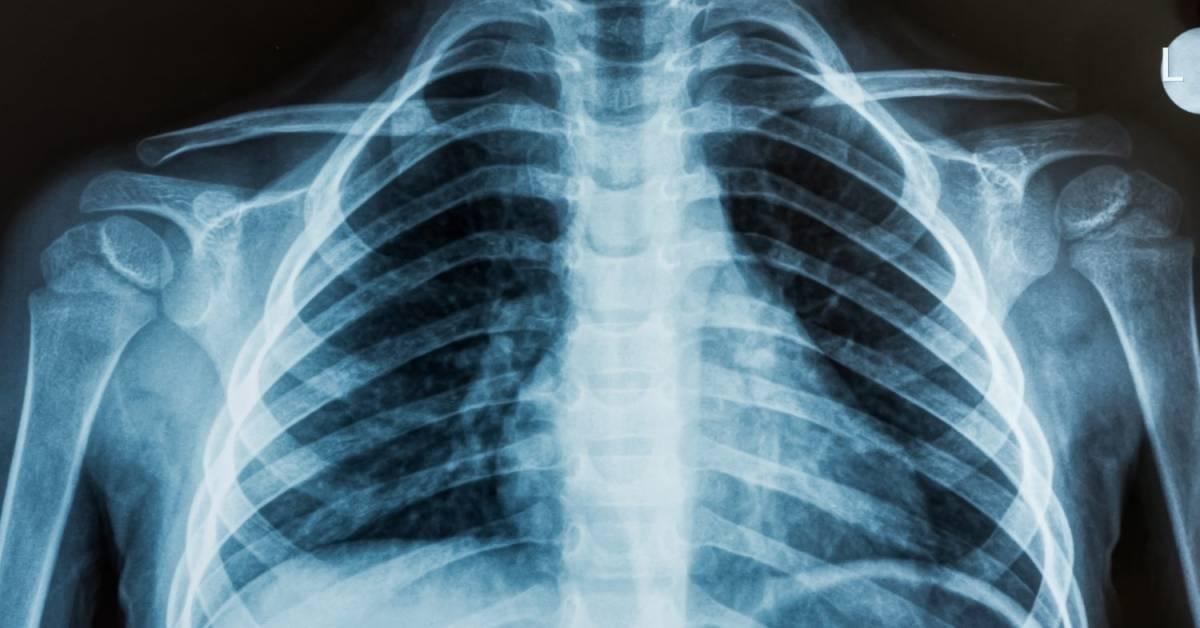 Рентген головы (черепа) киев: что показывает, подготовка к процедуре | центр «меддиагностика»