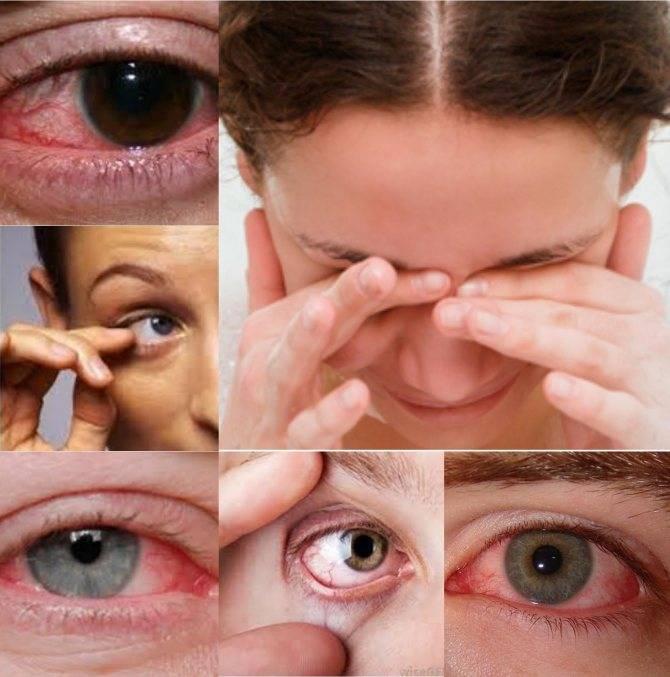 Глазная аллергия.