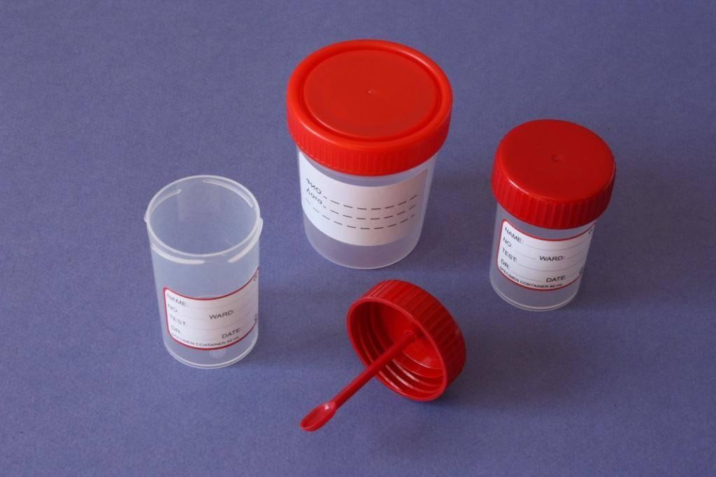 Норма углеводов в анализе кала у грудничка и расшифровка результатов исследования
