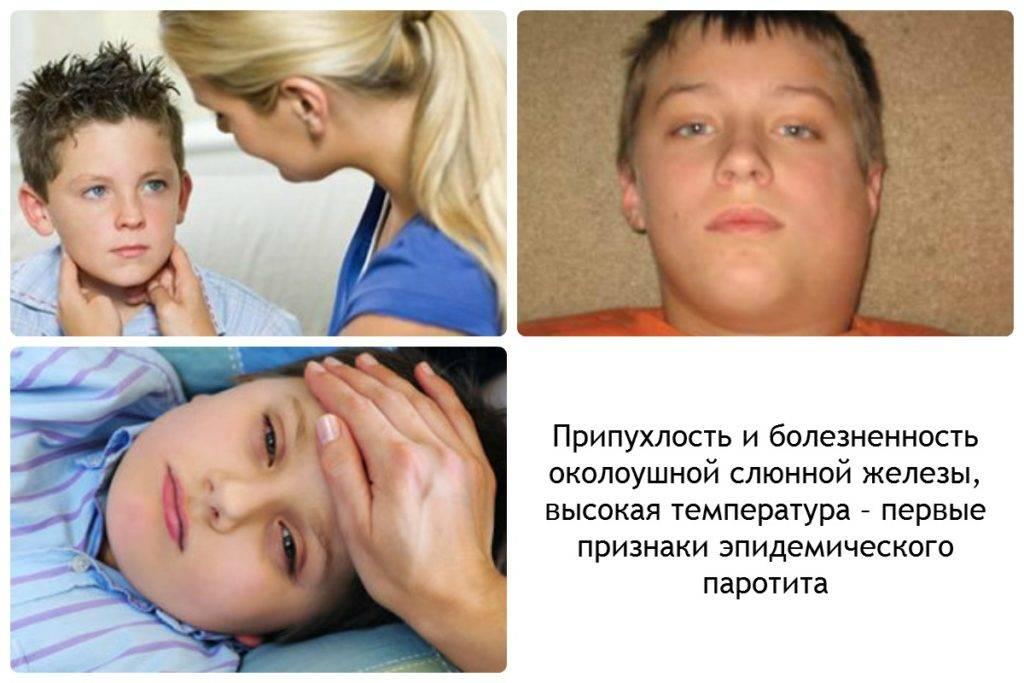 Эпидемический паротит (свинка). причины, симптомы, лечение и профилактика