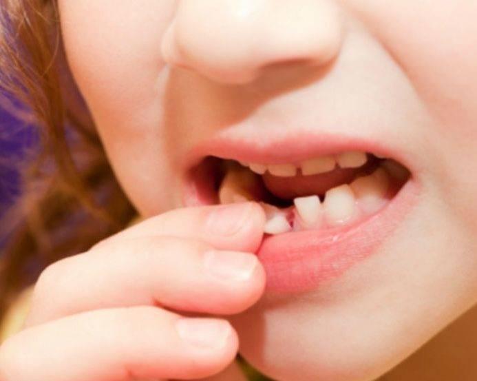 Удаление молочных зубов у детей. цена, показания, отзывы    новадент