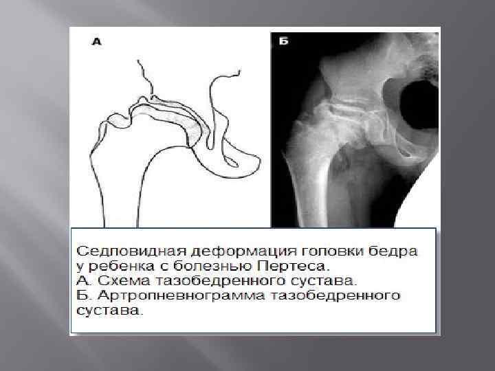 Болезнь пертеса у детей - лечение в минске (беларусь) | ortoped.by