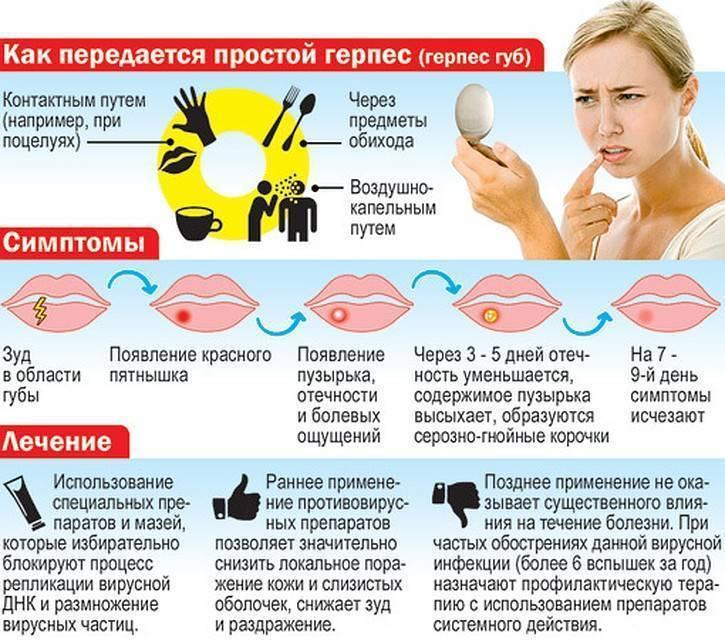 """Герпес на лице у ребенка: фото и лечение """"простуды"""" на щеках, лбу"""