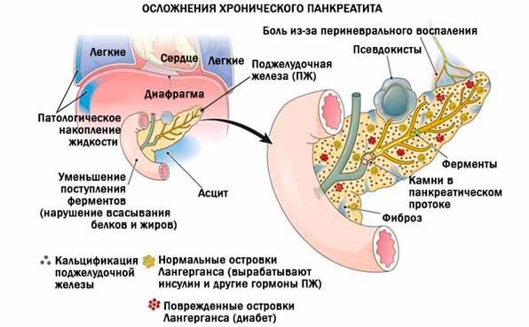 Лечение хронического панкреатита: лекарства, операция| компетентно о здоровье на ilive