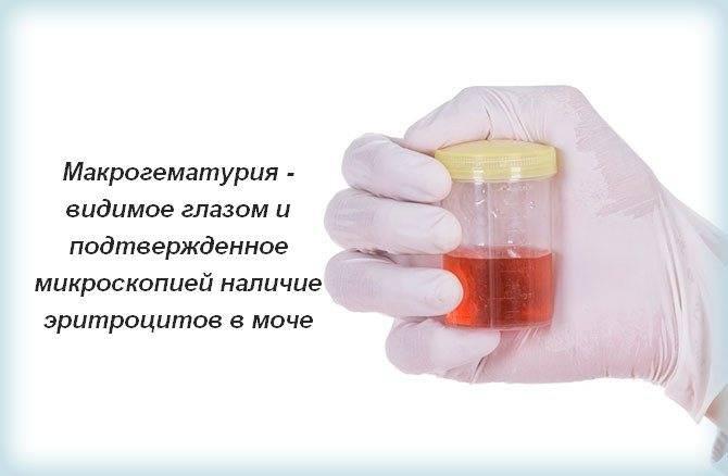 Кровь в моче — чем может быть вызван этот симптом?