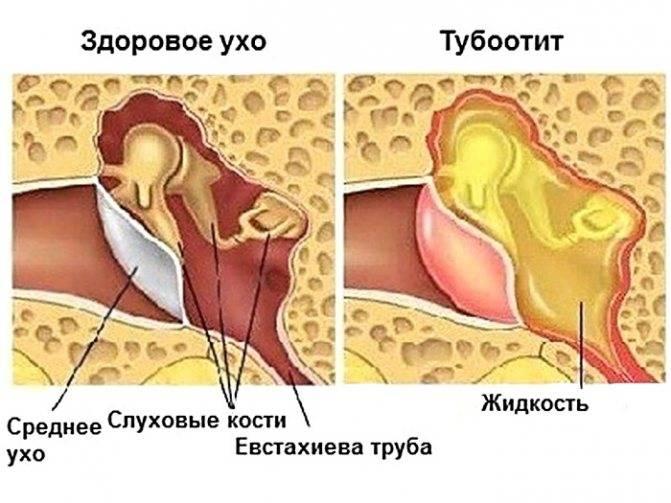 Адгезивная болезнь среднего уха                (адгезивный средний отит, слипчивый средний отит)
