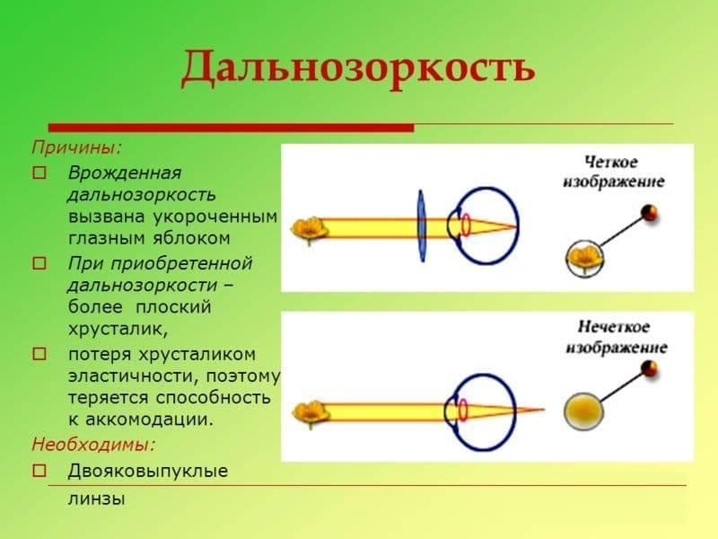 Дальнозоркость у ребенка в возрасте 2,3 года и в 5,6 лет - лечение детской дальнозоркости в москве