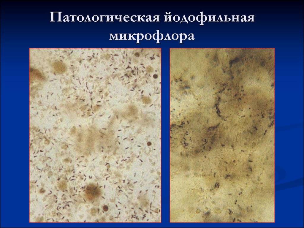 Альфа 1-антитрипсин в кале