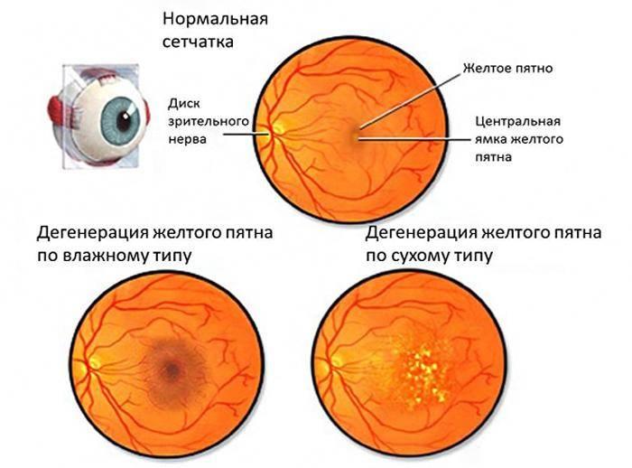 Ретинопатия глаз лечение. виды ретинопатии диагностика.