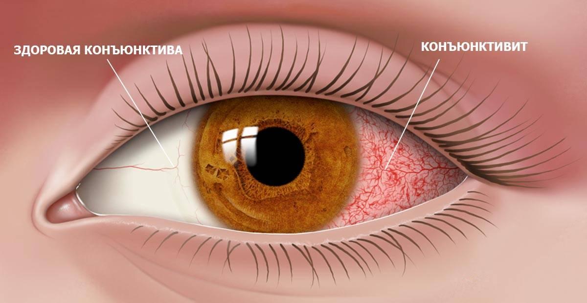 Почему глаза краснеют при конъюнктивите?