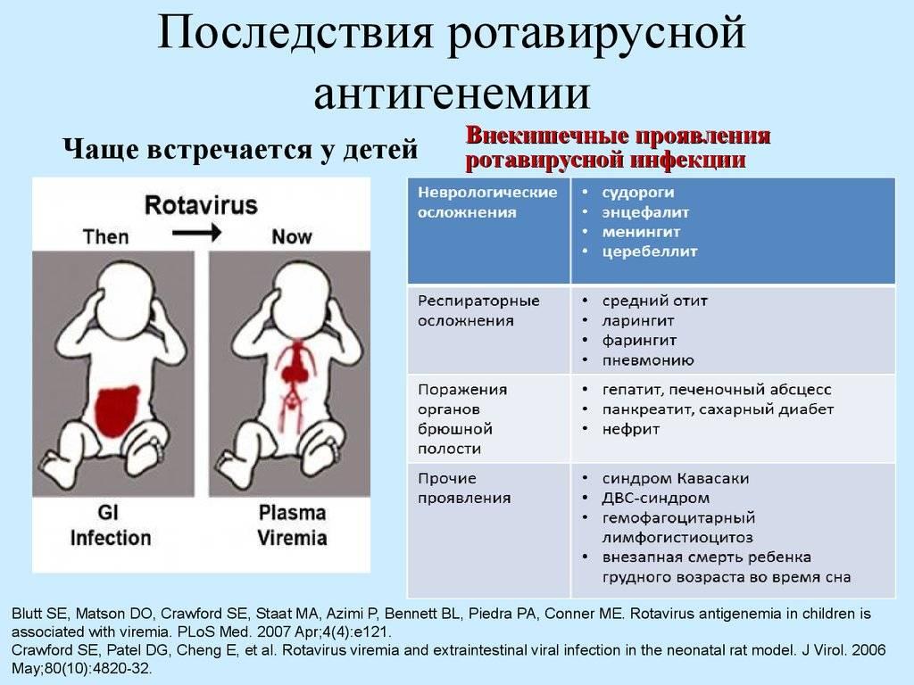Кишечная инфекция у детей: симптомы, лечение, острая кишечная форма, профилактика - сибирский медицинский портал
