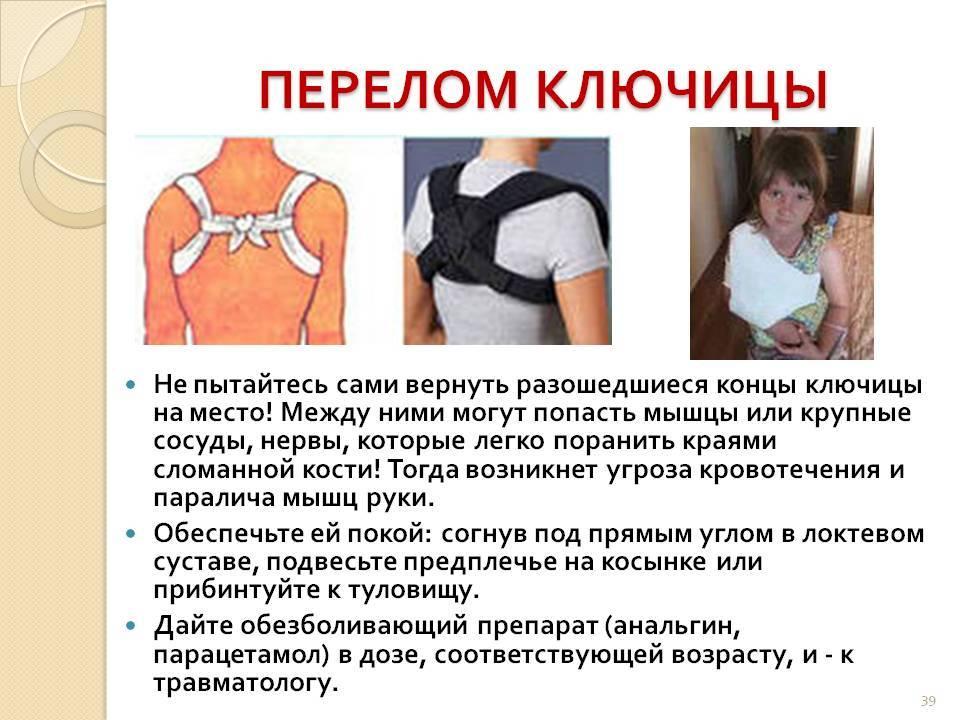 Перелом ключицы. причины, симптомы, виды, первая медицинская помощь и реабилитация :: polismed.com
