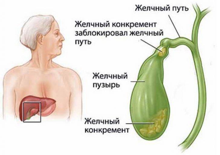Холецистит у детей | компетентно о здоровье на ilive