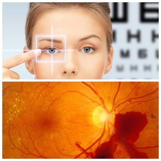 Ангиопатия сетчатки глаза у детей