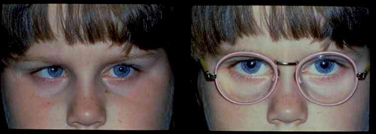 Амблиопия у детей: что это такое, лечение ленивого глаза средней и высокой степени