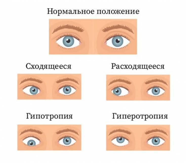 Как лечить скрытое косоглазие? - энциклопедия ochkov.net