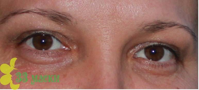 Как быстро убрать мешки под глазами без операции за 1 день - косметологический способ.