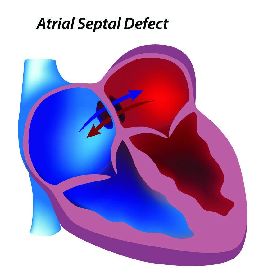 Открытое овальное окно в сердце у ребенка: что это такое, когда оно должно закрыться у грудничка?