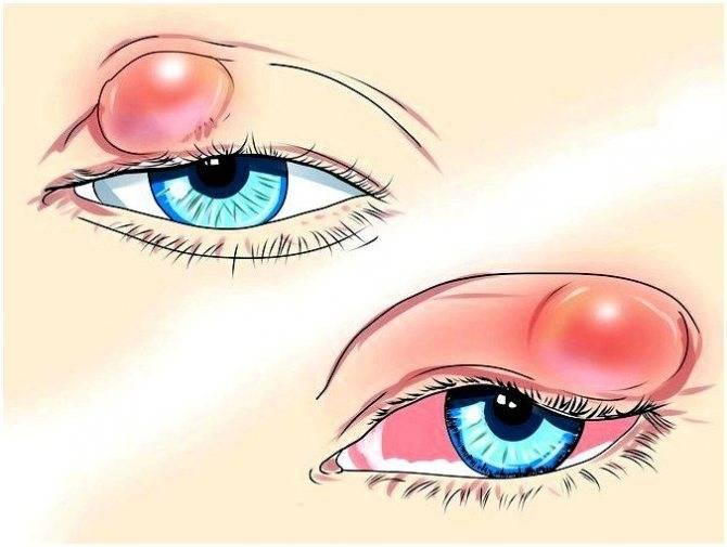 Что такое ячмень на глазу