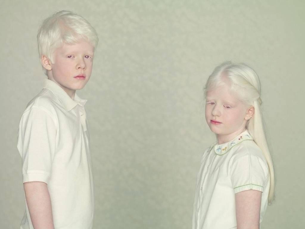 Сообщество пациентов с альбинизмом. форум пациентов с альбинизмом