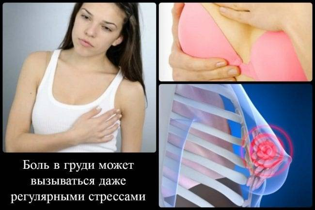 Уплотнения, узлы в молочной железе