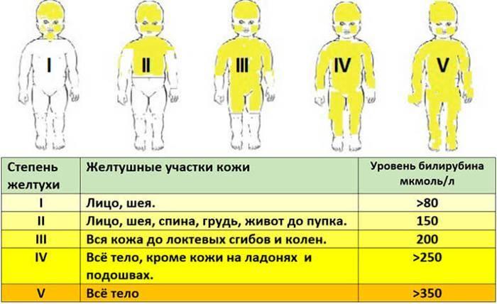 Желтые пятна в глазах - симптомы, признаки и лечение. портал vseozrenii.