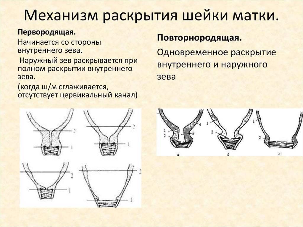 Особенности раскрытие шейки матки перед родами, как ускорить - способы