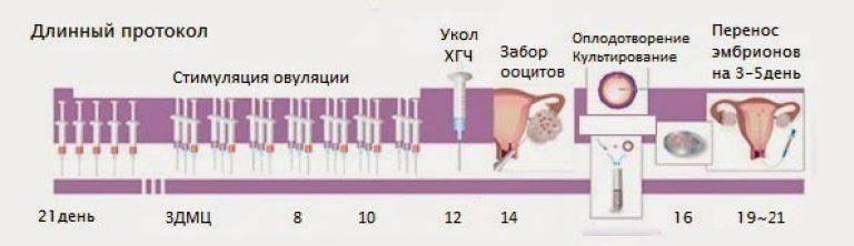 Подсадка (перенос) эмбрионов при эко