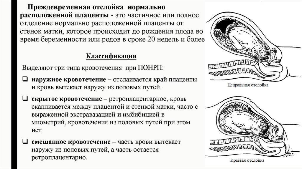 Преждевременная отслойка плаценты - что делать и как определить — клиника isida киев, украина