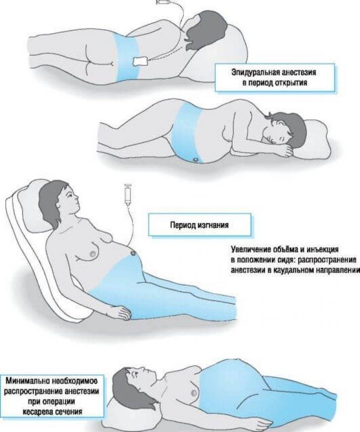 Боли в спине после массажа, наркоза и анестезии: причины | компетентно о здоровье на ilive