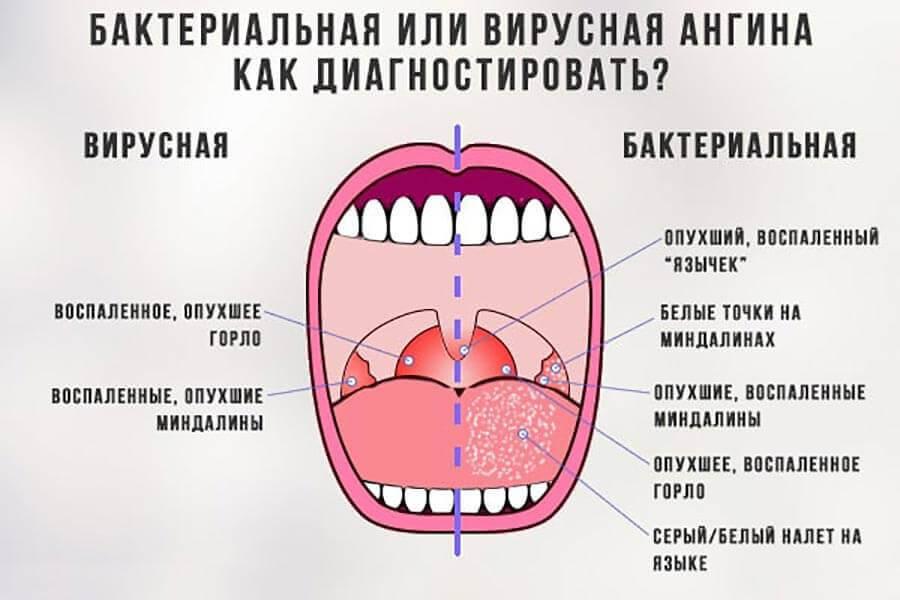 Особенности бактериальной ангины: симптомы, причины возникновения, лечение - лор клиника в чертаново