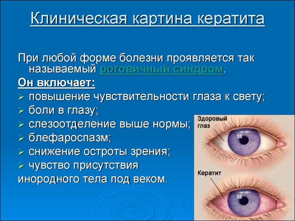 Что такое конъюнктивит: симптомы, причины, виды, лечение и профилактика - энциклопедия ochkov.net