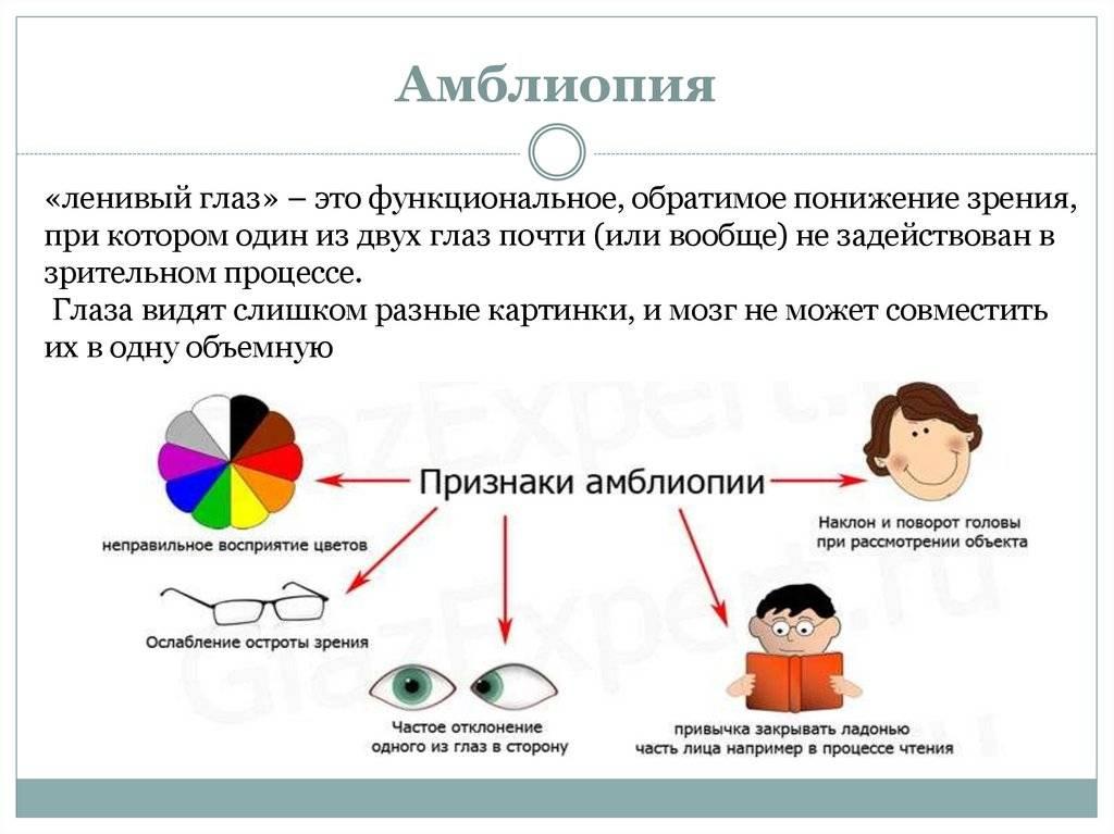 Лечение амблиопии (ленивый глаз) у взрослых и детей, степени, диагностика и коррекция зрения