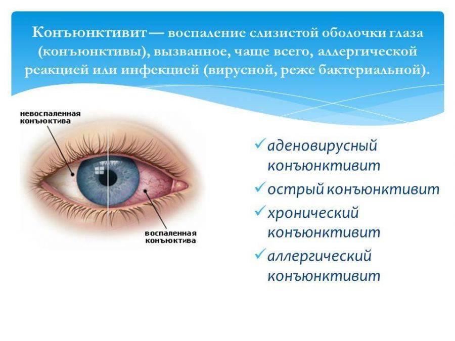 Глазная аллергия - симптомы, виды, типы, методы лечения. - энциклопедия ochkov.net