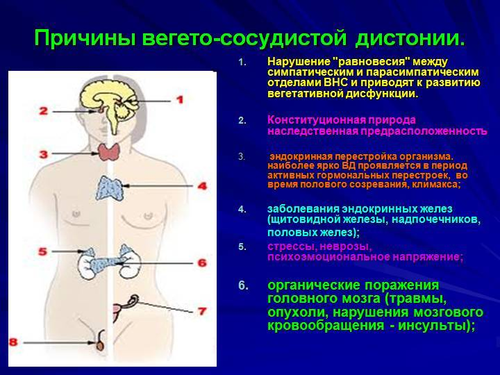Вегето-сосудистая дистония (всд): типы, симптомы и лечение