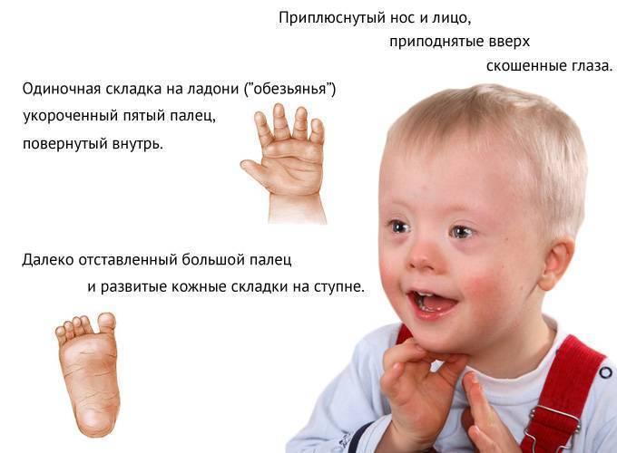 Синдром дауна: признаки, причины, диагностика — online-diagnos.ru