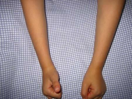 Перелом копчика: симптомы и последствия, лечение