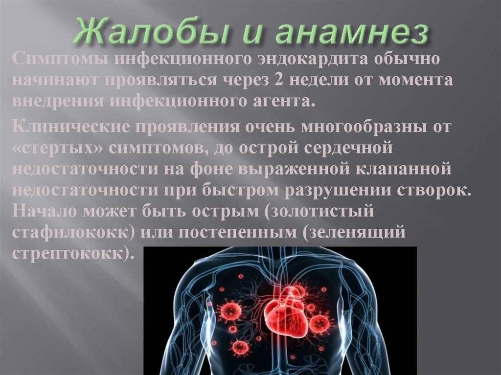 Неинфекционный эндокардит: причины, симптомы, диагностика, лечение | компетентно о здоровье на ilive