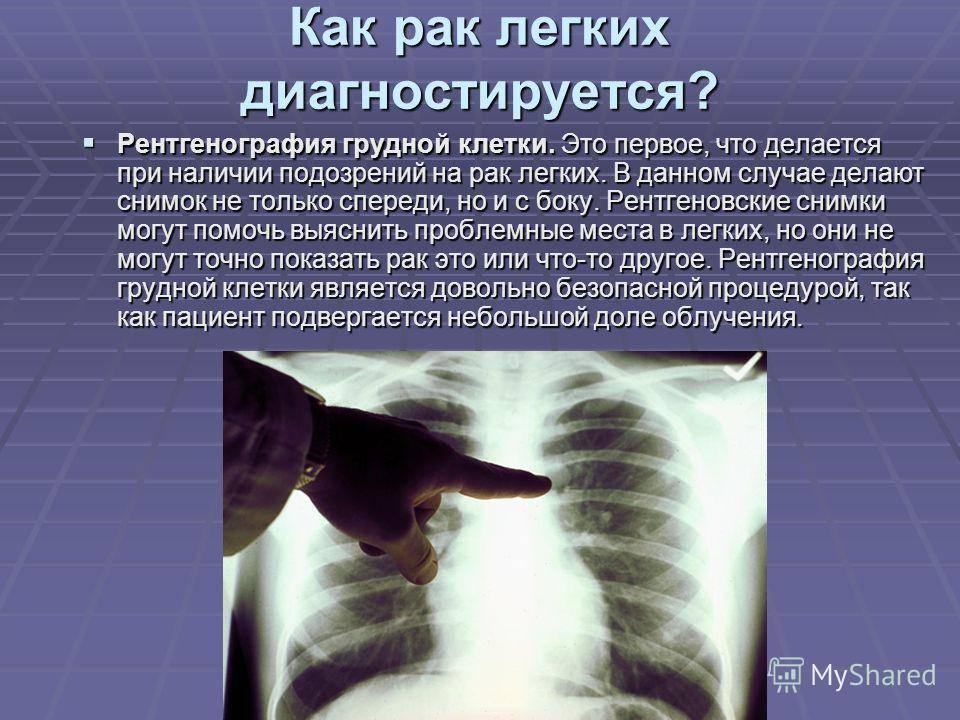 Можно ли делать флюорографию после рентгена в один день?