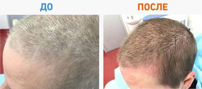 Как растут волосы на голове и что такое фазы роста волос это важно знать всем